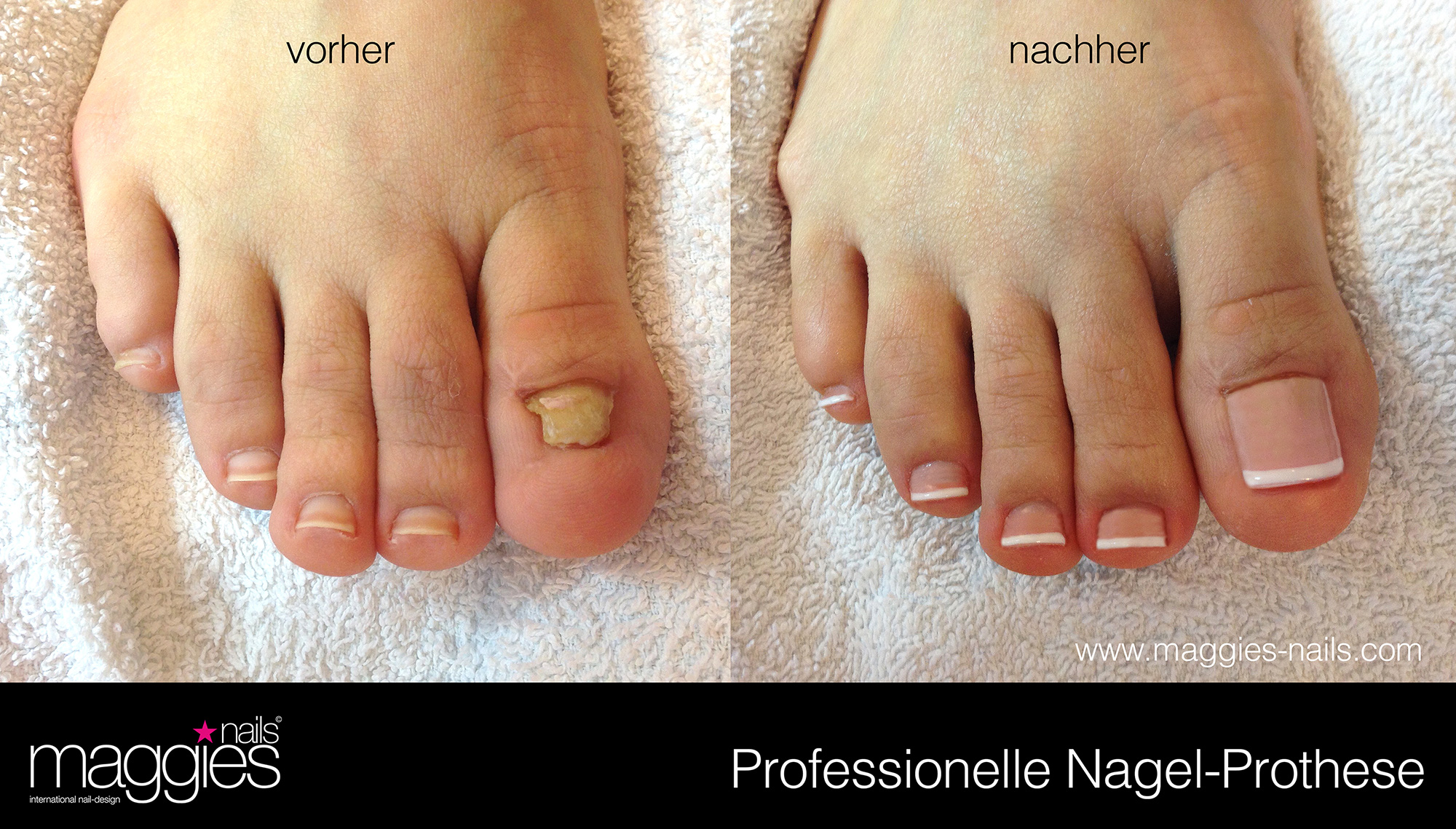 Nagelprothese | maggies nails * international nail-design